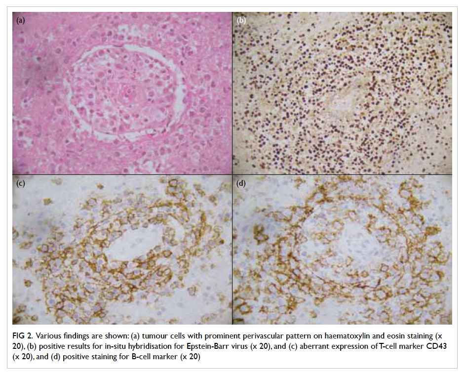Post Transplantation Primary Central Nervous System Lymphoma In A