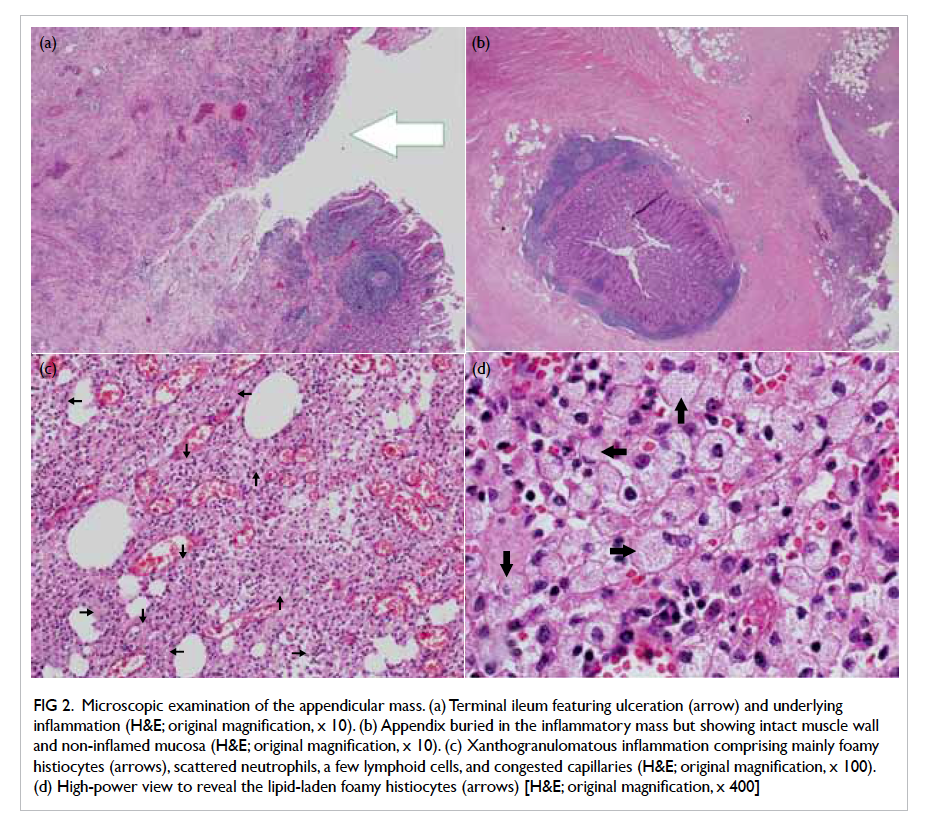 Xanthogranulomatous Inflammation Of Terminal Ileum Report Of A Case
