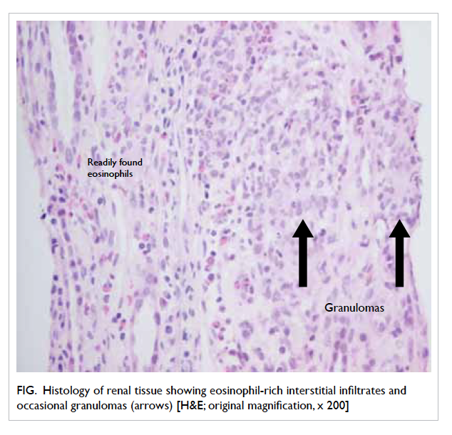 Clozapine Induced Acute Interstitial Nephritis Hkmj