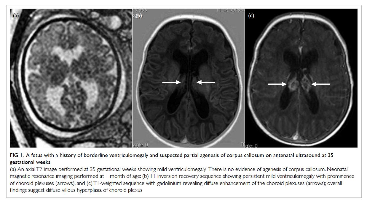 Magnetic resonance imaging of the fetal brain | HKMJ